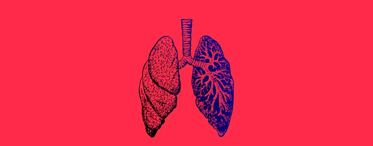 Жена почина след трансплантация на бели дробове заразени с COVID-19